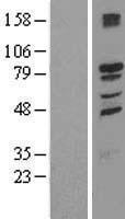 NBL1-16975 - TMCC1 Lysate