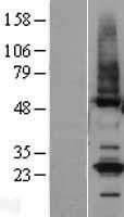 NBL1-16976 - TMCO1 Lysate