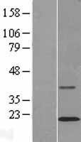 NBL1-16977 - TMCO2 Lysate