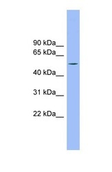 NBP1-57660 - TMCO6