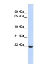 NBP1-62557 - TMED1