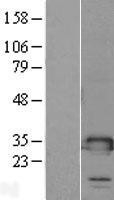 NBL1-16979 - TMED1 Lysate