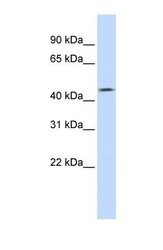 NBP1-62413 - Tomoregulin-1 / TMEFF1
