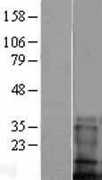 NBL1-16990 - TMEM100 Lysate
