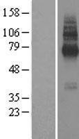 NBL1-16993 - TMEM104 Lysate