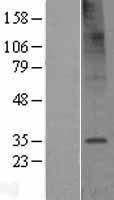 NBL1-16995 - TMEM106C Lysate