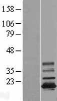 NBL1-16998 - TMEM11 Lysate