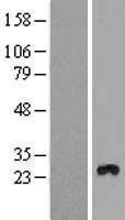 NBL1-17000 - TMEM111 Lysate