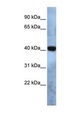 NBP1-69572 - TMEM115 / PL6