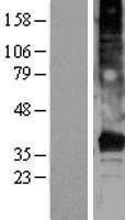 NBL1-17003 - TMEM120A Lysate