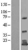 NBL1-17005 - TMEM125 Lysate