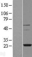 NBL1-17006 - TMEM126A Lysate