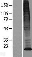 NBL1-17008 - TMEM128 Lysate