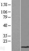 NBL1-17015 - TMEM141 Lysate