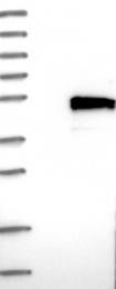 NBP1-83809 - TMEM143