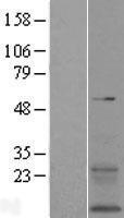 NBL1-17032 - TMEM167B Lysate