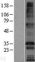 NBL1-17033 - TMEM169 Lysate