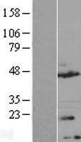 NBL1-17036 - TMEM170A Lysate