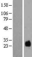 NBL1-17039 - TMEM174 Lysate