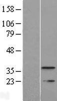 NBL1-17043 - TMEM177 Lysate
