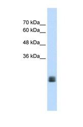 NBP1-69634 - TMEM178