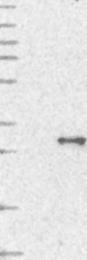 NBP1-86062 - TMEM179B