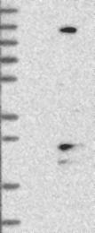 NBP1-88452 - TMEM186