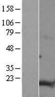 NBL1-17050 - TMEM188 Lysate