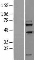 NBL1-17056 - TMEM200A Lysate