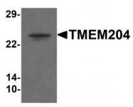 NBP1-77069 - TMEM204 / CLP24