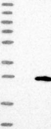 NBP1-88444 - TMEM204 / CLP24