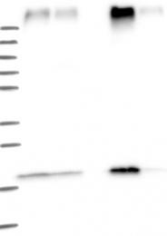 NBP1-81255 - TMEM205