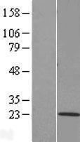 NBL1-17060 - TMEM205 Lysate