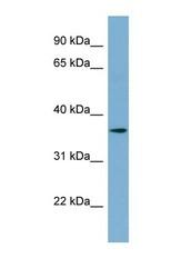 NBP1-70729 - TMEM206 / C1orf75