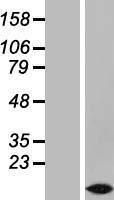 NBL1-17062 - TMEM207 Lysate