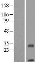 NBL1-17063 - TMEM208 Lysate