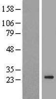 NBL1-17067 - TMEM222 Lysate
