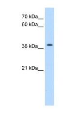 NBP1-59474 - TMEM30A / CDC50A