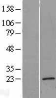 NBL1-17074 - TMEM35 Lysate