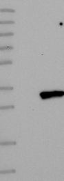 NBP1-88803 - TMEM38B