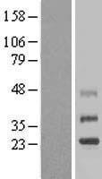 NBL1-17076 - TMEM38B Lysate