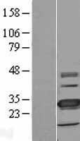 NBL1-17078 - TMEM41A Lysate