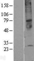 NBL1-17082 - TMEM45A Lysate
