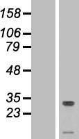NBL1-17086 - TMEM50A Lysate