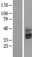 NBL1-17088 - TMEM51 Lysate