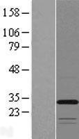 NBL1-17089 - TMEM53 Lysate