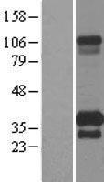 NBL1-17091 - TMEM55B Lysate
