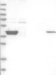 NBP1-84605 - Macoilin / TMEM57