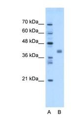 NBP1-69576 - TMEM59L