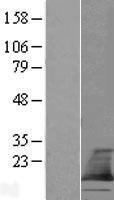 NBL1-17095 - TMEM60 Lysate